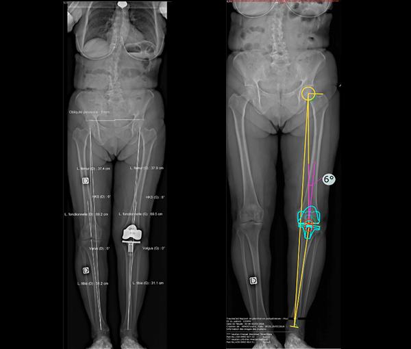 Radiographie EOS - examens d'imagerie l Institut de radiologie de Paris