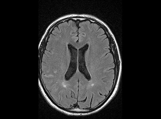 Cas clinique : Troubles cognitifs et déficit transitoire l Institut de radiologie de Paris
