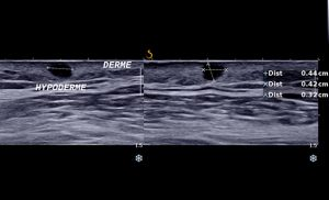 Le rôle de l'imagerie dans le suivi et la surveillance des mélanomes l Institut de radiologie de Paris