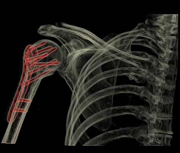 Scanner - examen d'imagerie l Institut de radiologie de Paris