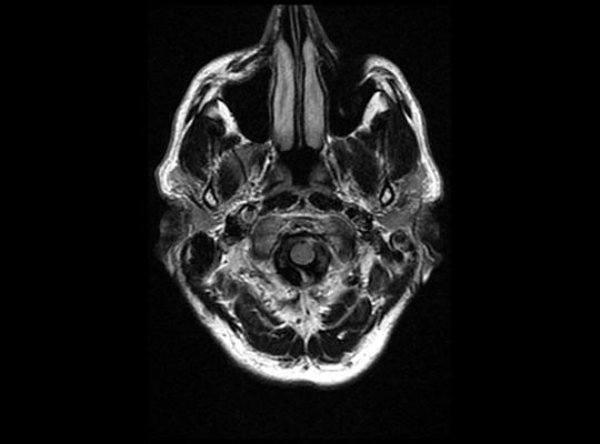 Céphalée aiguë et ptosis l Cas clinique de l'institut de radiologie de Paris