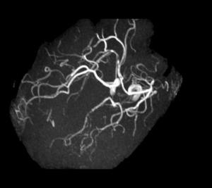 Cas clinique : Céphalée aiguë et ptosis l Institut de radiologie de Paris