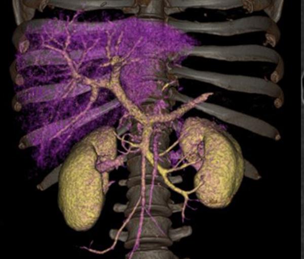 Imagerie de l'appareil digestif l Institut de radiologie de Paris