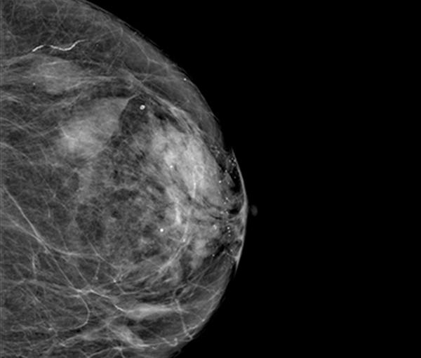 Imagerie du sein - imagerie de la femme l Institut de radiologie de Paris