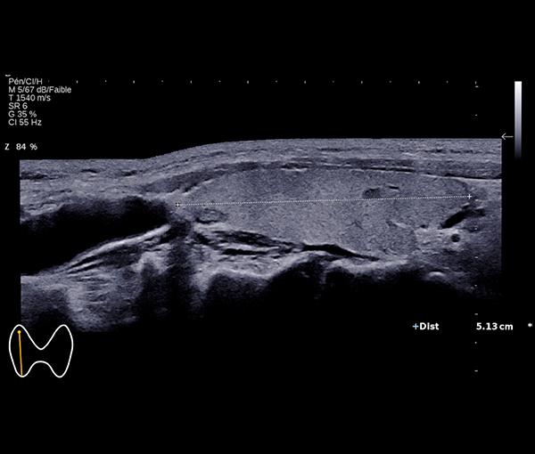 Imagerie de la Thyroïde l Institut de radiologie de Paris