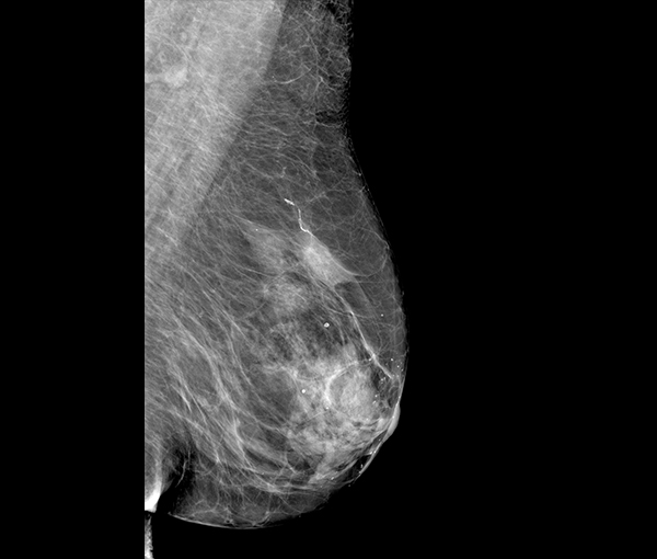 Mammographie - imagerie de la femme l Institut de radiologie de Paris