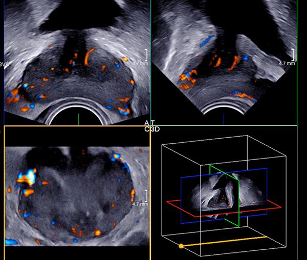 Biopsie prostatique, imagerie de la prostate l Institut de radiologie de Paris