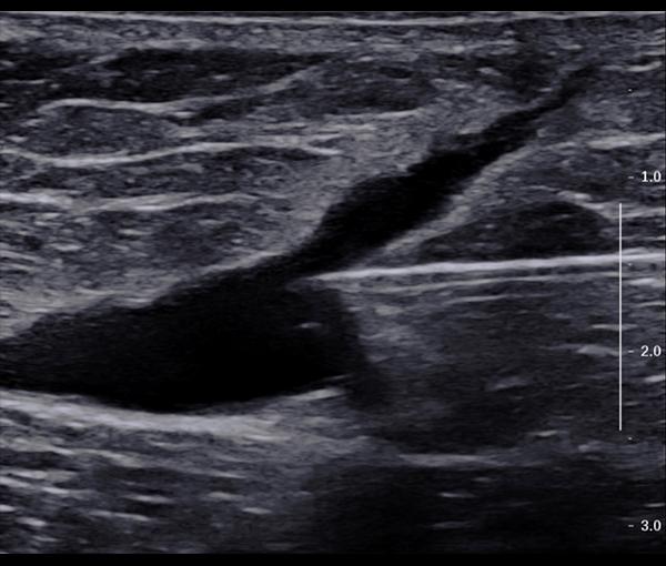 Echographie Doppler - examen d'imagerie l Institut de radiologie de Paris