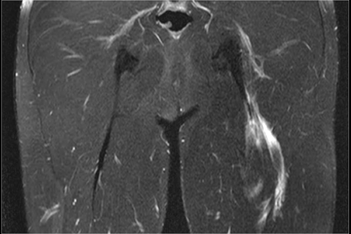 L'imagerie des muscles l Institut de radiologie de Paris