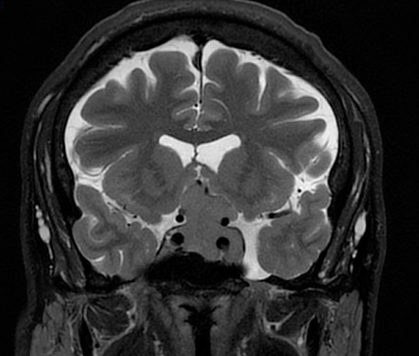 IRM - examen d'imagerie à Paris l Institut de radiologie de Paris