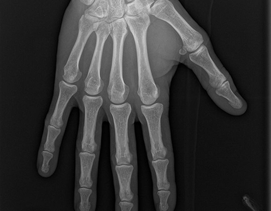 Imagerie des os et articulations l Institut de radiologie de Paris