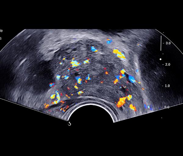 Imagerie rein, vessie et prostate l Institut de radiologie de Paris