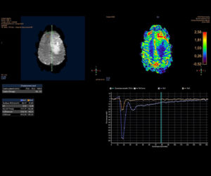 Nouvelle IRM 3T l Institut de radiologie de Paris