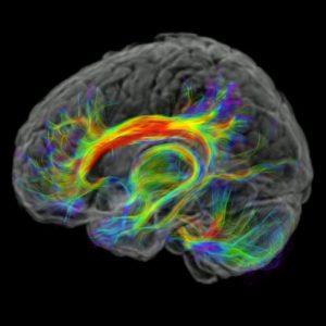 Tractographie cérébrale l Institut de radiologie de Paris
