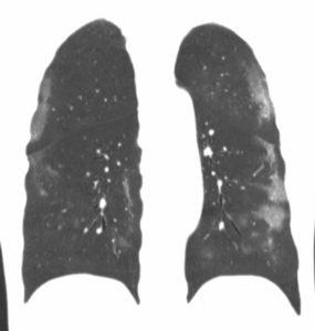 Cas clinique de pneumopathie infectieuse par SARS Cov 2 (COVID-19)